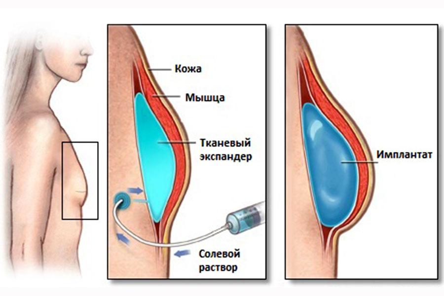 Сон делать операцию на грудь