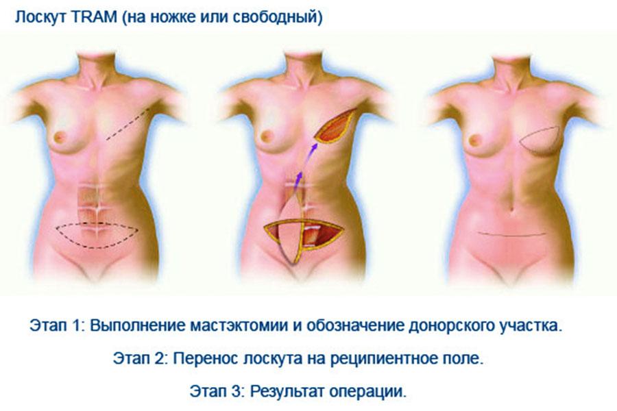 Как увеличить грудь не делая операций